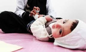 48 عاملاً صحياً يتدربون على الرعاية التكاملية لصحة الطفل بحضرموت